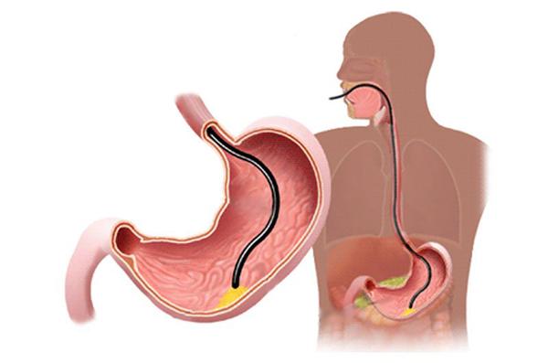 phương pháp nội soi dạ dày