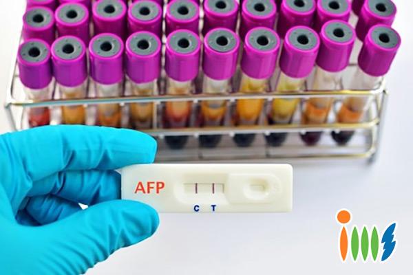 Tầm soát ung thư gan bằng xét nghiệm AFP
