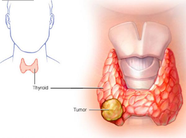 Bệnh ung thư tuyến giáp là gì