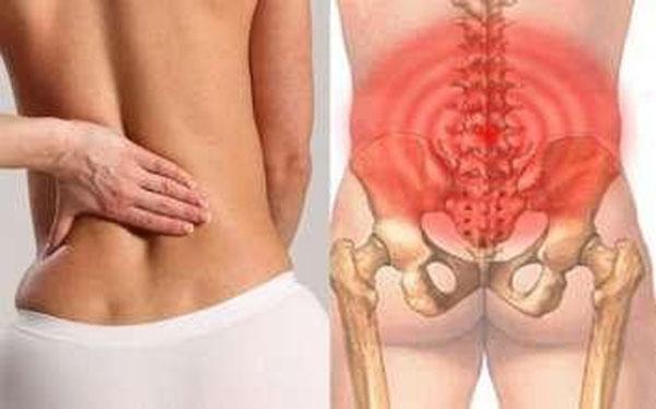 Đau vùng thắt lưng là dấu hiệu nên đi tầm soát ung thư tiền liệt tuyến