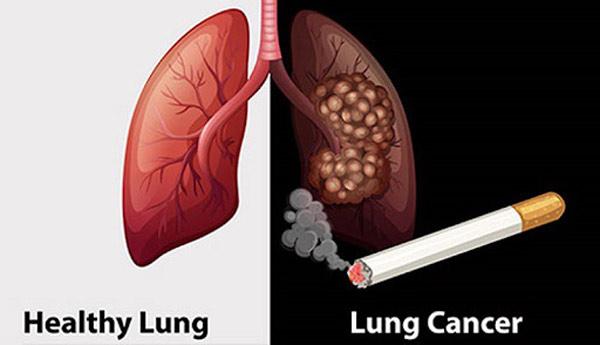 Đối tượng nên khám tầm soát ung thư phổi