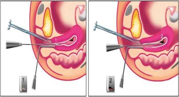 Xét nghiệm tầm soát ung thư cổ tử cung bằng phương pháp sinh thiết