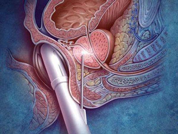 Tầm soát ung thư tiền liệt tuyến bằng phương pháp sinh thiết