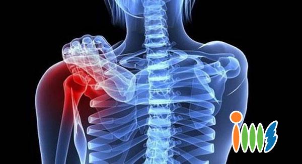 Bệnh ung thư xương có tỷ lệ người mắc bị tử vong cao