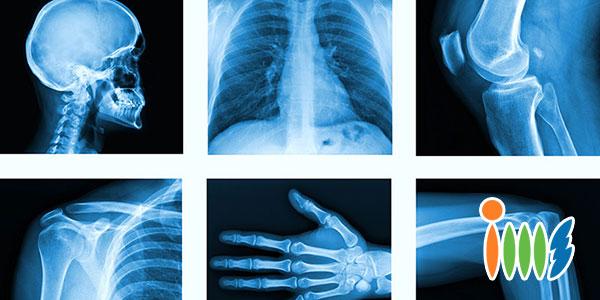 Phương pháp chụp X-quang xét nghiệm ung thư xương