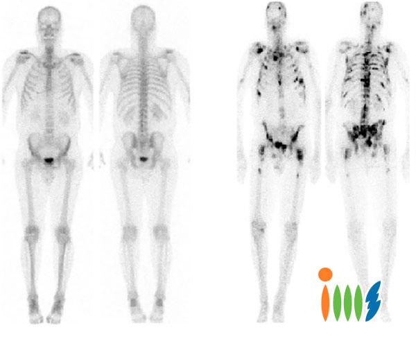 Chụp xạ hình xương xét nghiệm ung thư xương