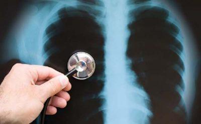 Chụp X-quang tim phổi