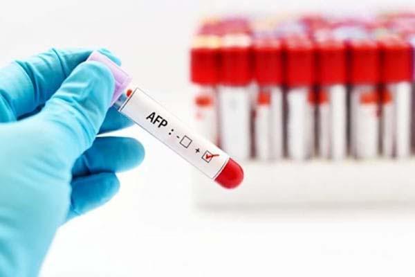 Xét nghiệm AFP tầm soát ung thư cho nam