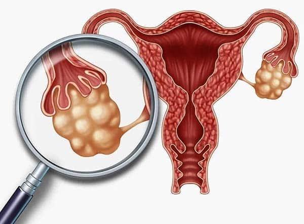 Đối tượng nên tầm soát ung thư buồng trứng