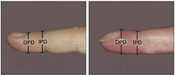Kiểm tra ung thư phổi bằng ngón tay