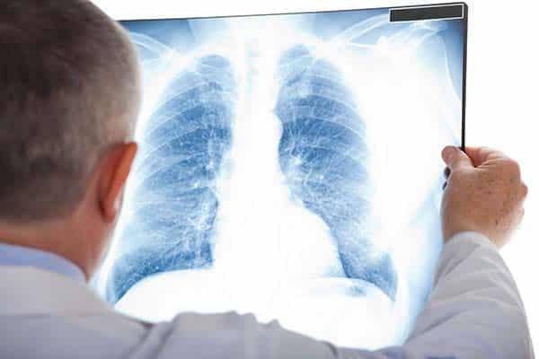 Kiểm tra ung thư phổi bằng phương pháp chụp X-quang