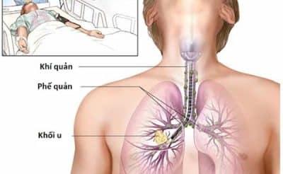 Kiểm tra ung thư phổi bằng phương pháp soi phế quản