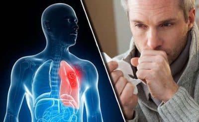 Đối tượng nên khám ung thư phổi