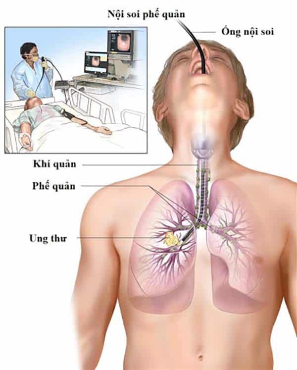 Kiểm tra ung thư phổi bằng phương pháp nội soi