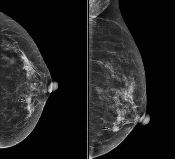 Chụp X-quang tuyến vú
