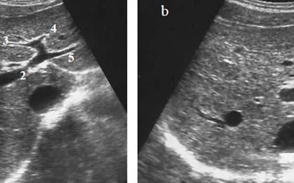 Tầm soát ung thư tuyến giáp bằng phương pháp siêu âm tuyến giáp