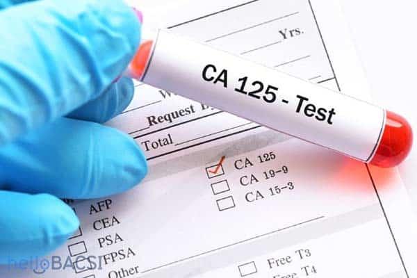 Xét nghiệm ung thư buồng trứng bằng phương pháp tìm dấu ấn ung thu CA-125