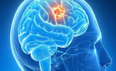 3 cách kiểm tra ung thư não hiệu quả