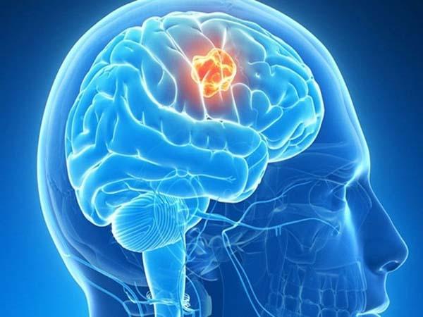 Cách kiểm tra ung thư não