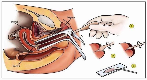 Quy trình thực hiện xét nghiệm Pap smear