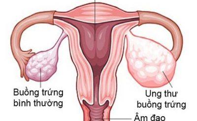 Xét nghiệm máu kiểm tra ung thư buồng trứng được không?