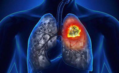 ung thư phổi nên ăn hoa quả gì